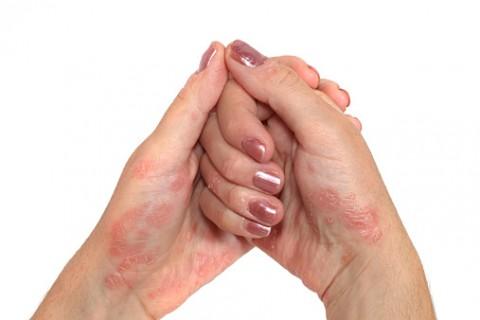 Psoriasis Hand